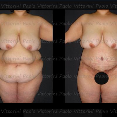 post-obesita1