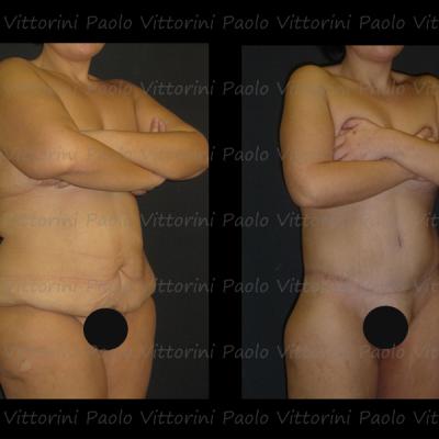 post-obesita7