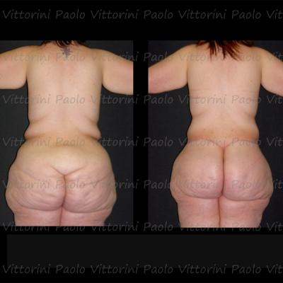 POST-obesita4