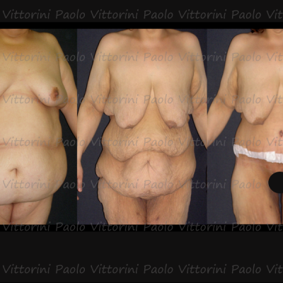 post-obesita9